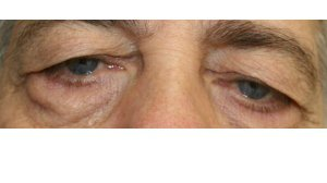 Manhattan BLEPHAROPLASTY Before 5